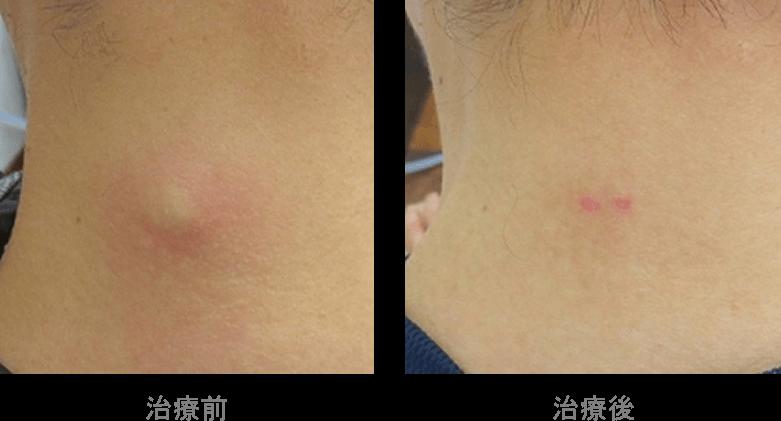 粉瘤の日帰り手術は実績多数の【はなふさ皮膚科】へ