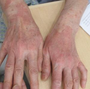 光アレルギー性接触皮膚炎0004