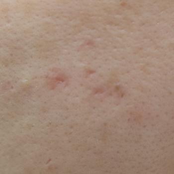 ニキビ痕治療   症例紹介   実績多数の【はなふさ皮膚科へ】