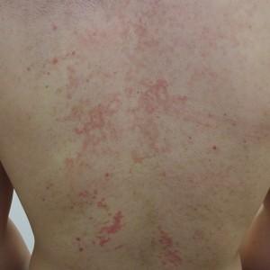 色素性痒疹10002