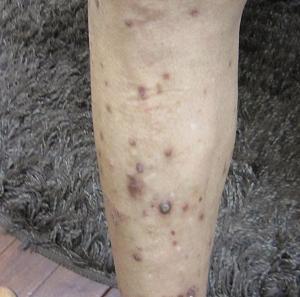結節性痒疹0007