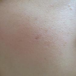 20代女性の頬の小豆大の粉瘤です。傷跡を残すことは許されない手術でしたが、臍抜き法で問題なく取りきることが出来ました。1ヶ月後の写真です.